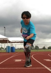 Child ready to race, we provide prosthetics to Montgomery AL and Mobile, AL, below the knee prosthetics, above the knee prosthetics and upper extremity prosthetics.